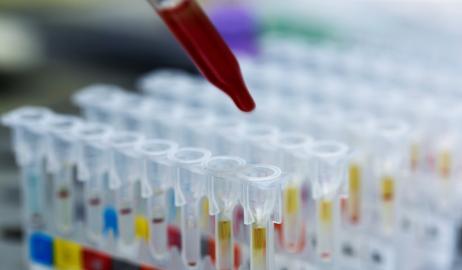 Μπορεί ο τύπος του αίματος να καθορίζει τη βέλτιστη διατροφή;