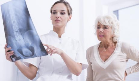 Παγκόσμια Ημέρα Οστεοπόρωσης - Διατροφή ή άσκηση παίζουν σημαντικότερο ρόλο για γερά οστά;